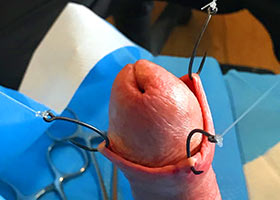Suspension with the fish hooks in the foreskin