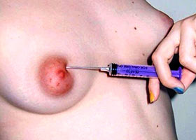 Sister shows saline injections in her tits